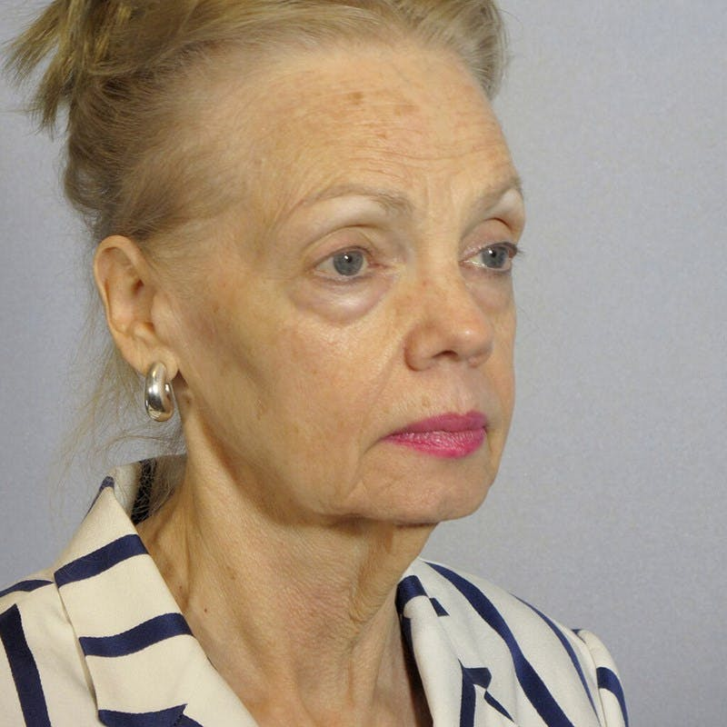 Facelift Gallery - Patient 20906608 - Image 3