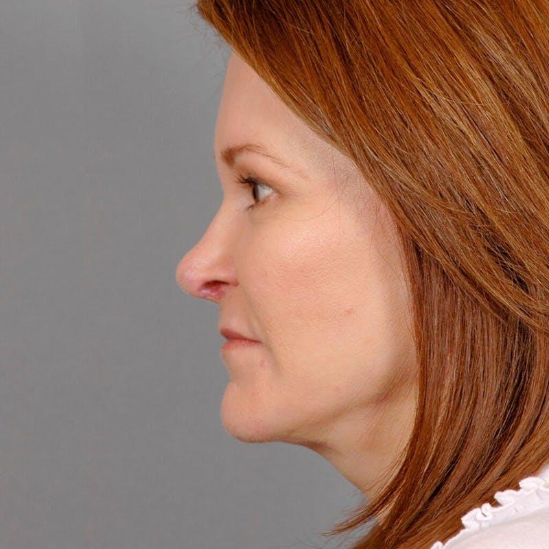 Facelift Gallery - Patient 20906611 - Image 6