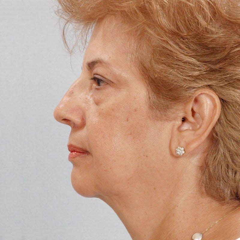 Facelift Gallery - Patient 20906624 - Image 5