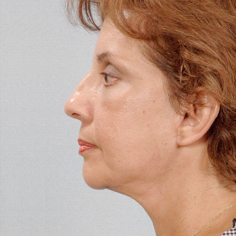 Facelift Gallery - Patient 20906624 - Image 6