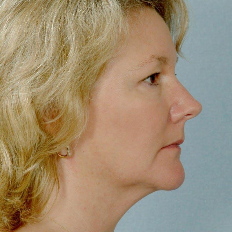 Facelift Gallery - Patient 20906631 - Image 5