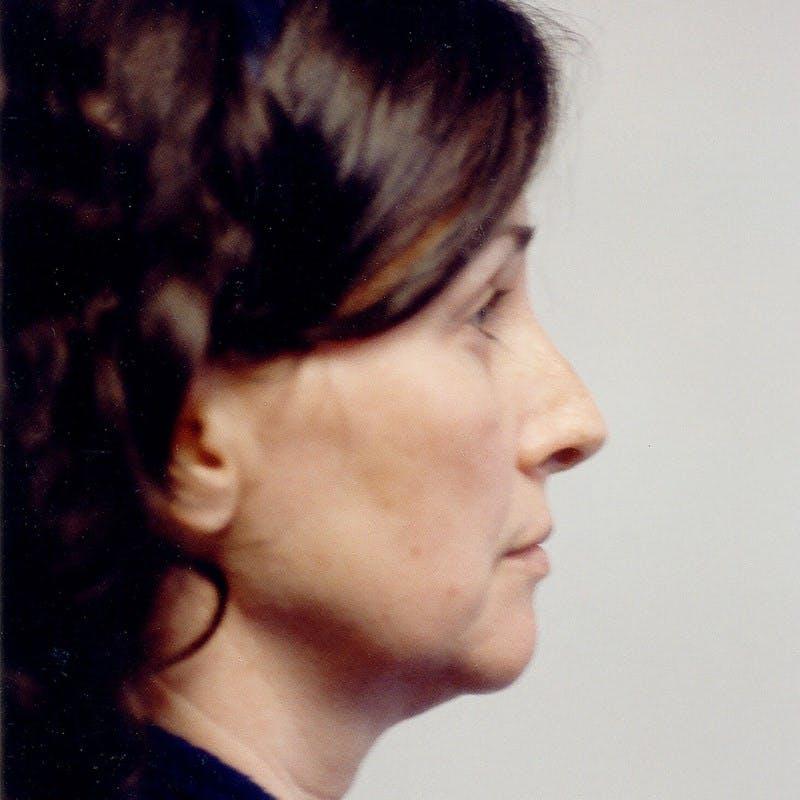 Facelift Gallery - Patient 20906634 - Image 5