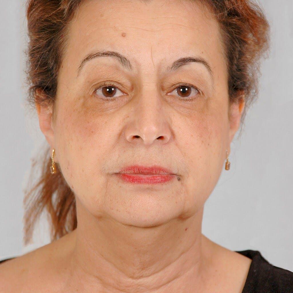 Facelift Gallery - Patient 20906637 - Image 1