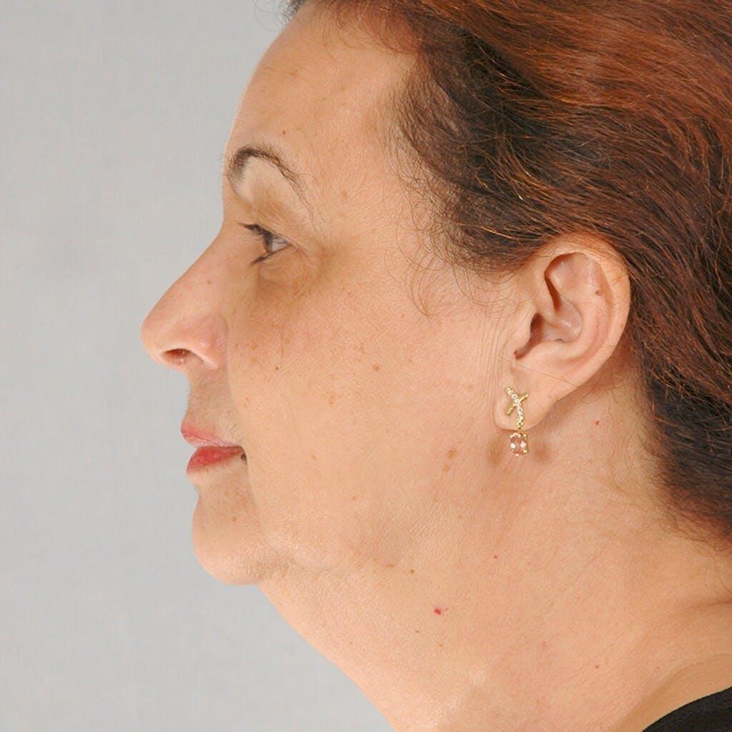 Facelift Gallery - Patient 20906637 - Image 5