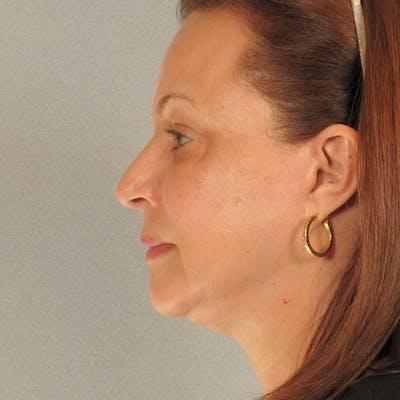 Facelift Gallery - Patient 20906637 - Image 6