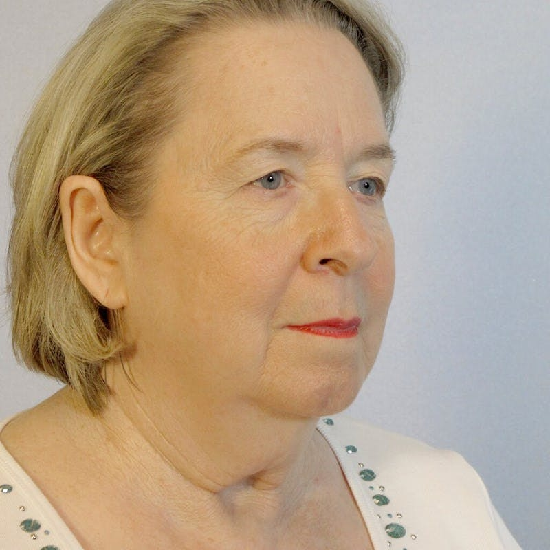 Facelift Gallery - Patient 20906645 - Image 3
