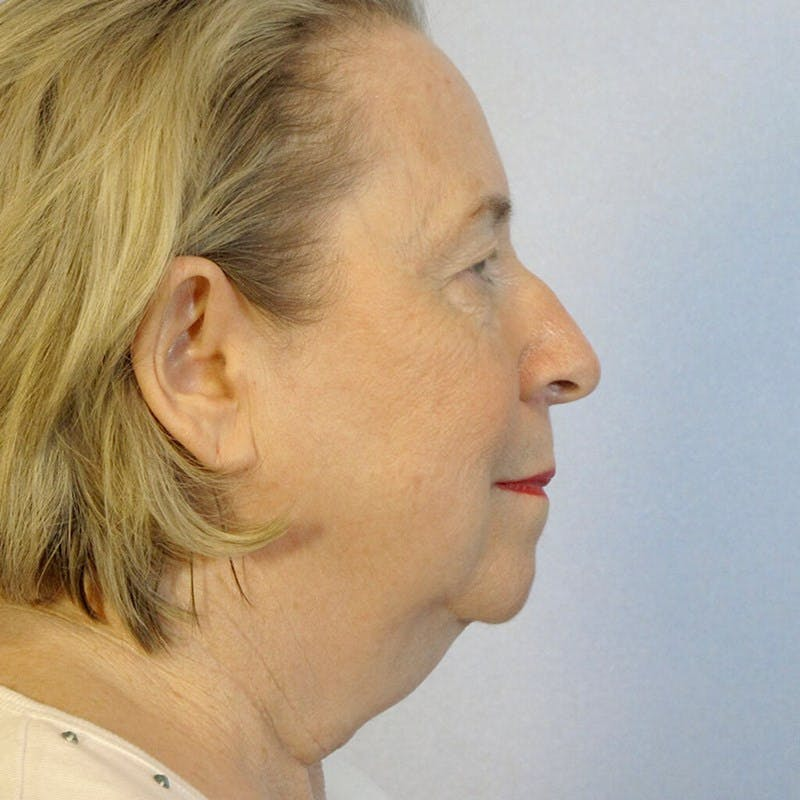 Facelift Gallery - Patient 20906645 - Image 5