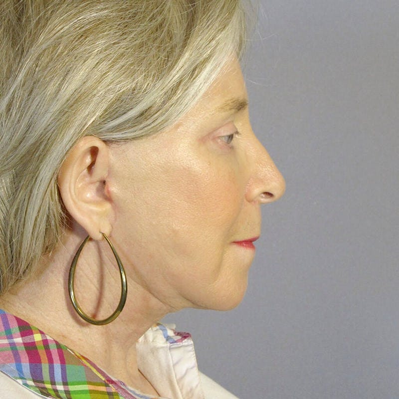 Facelift Gallery - Patient 20906645 - Image 6