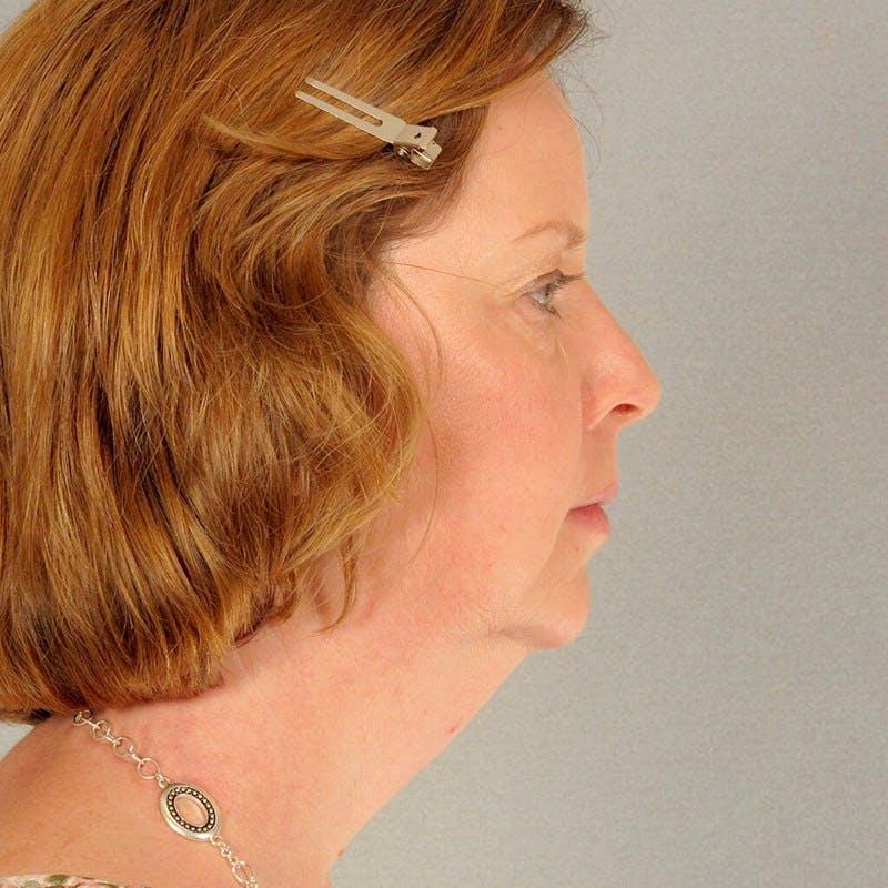 Facelift Gallery - Patient 20906646 - Image 5