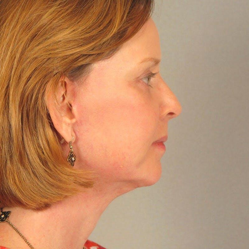 Facelift Gallery - Patient 20906646 - Image 6