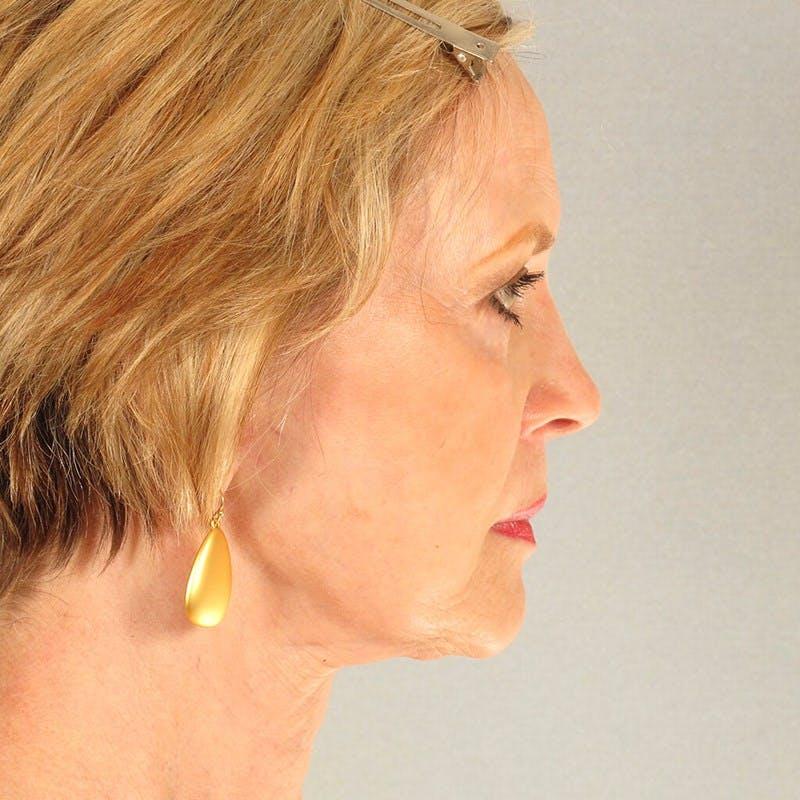 Facelift Gallery - Patient 20906647 - Image 6
