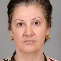 Facelift Gallery - Patient 20906654 - Image 1