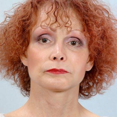 Facial Augmentation Gallery - Patient 20906661 - Image 2