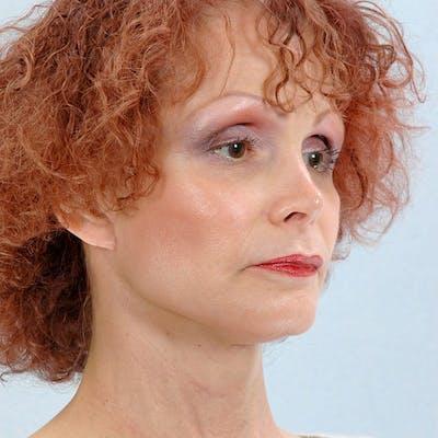 Facial Augmentation Gallery - Patient 20906661 - Image 4