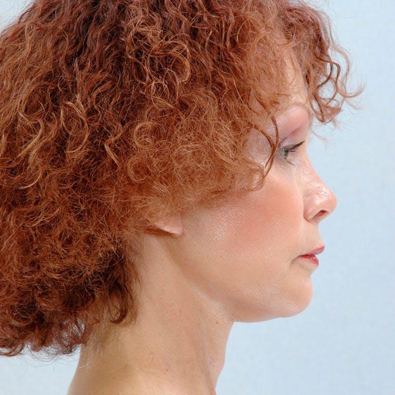 Facial Augmentation Gallery - Patient 20906661 - Image 6
