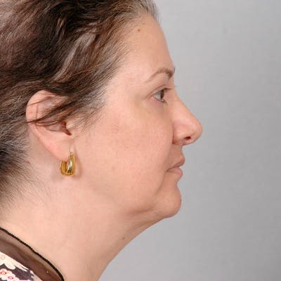 Neck Lift Gallery - Patient 20906664 - Image 1