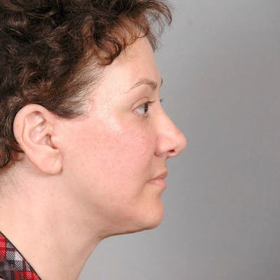 Neck Lift Gallery - Patient 20906664 - Image 2