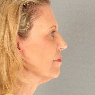Neck Lift Gallery - Patient 20906668 - Image 1