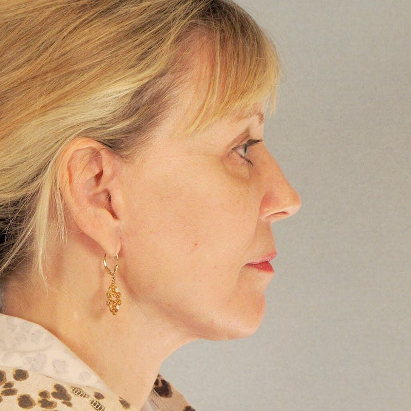 Neck Lift Gallery - Patient 20906668 - Image 2