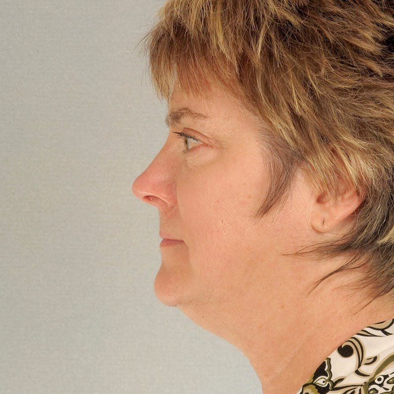 Neck Lift Gallery - Patient 20906673 - Image 1