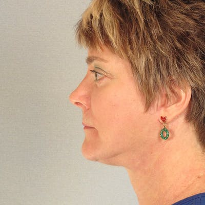 Neck Lift Gallery - Patient 20906673 - Image 2