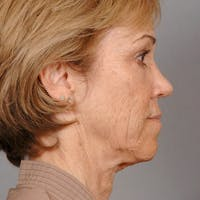 Neck Lift Gallery - Patient 20906678 - Image 1