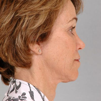 Neck Lift Gallery - Patient 20906678 - Image 2