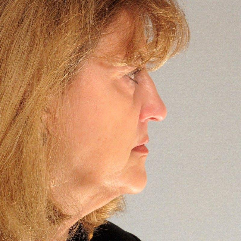 Neck Lift Gallery - Patient 20906686 - Image 1