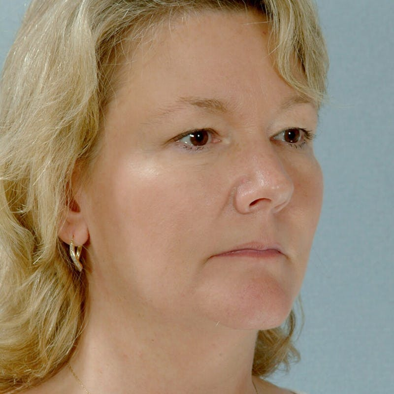Neck Lift Gallery - Patient 20906692 - Image 3