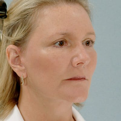 Neck Lift Gallery - Patient 20906692 - Image 4