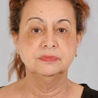 Neck Lift Gallery - Patient 20906695 - Image 1
