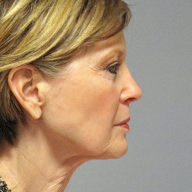 Neck Lift Gallery - Patient 20906697 - Image 5