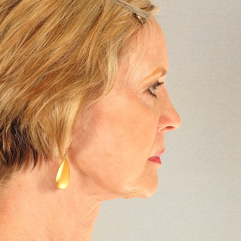 Neck Lift Gallery - Patient 20906697 - Image 6