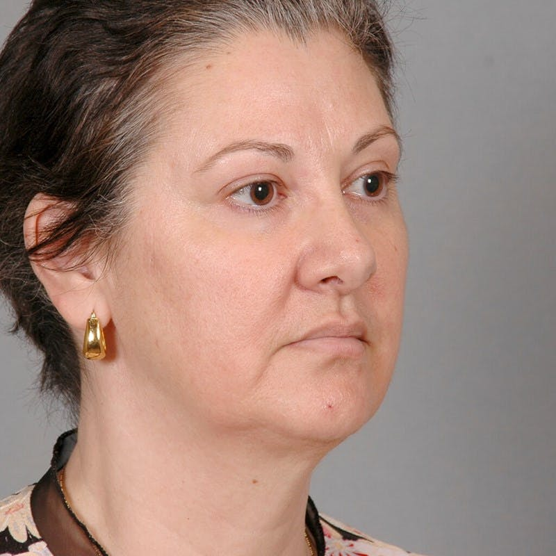 Neck Lift Gallery - Patient 20906714 - Image 3