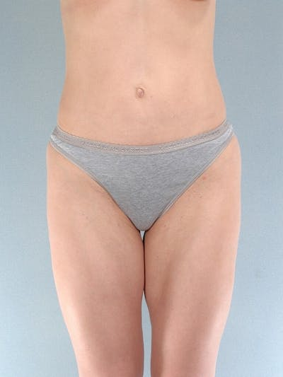 Liposuction Gallery - Patient 20909774 - Image 2