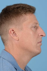 Rhinoplasty Gallery - Patient 20909777 - Image 1