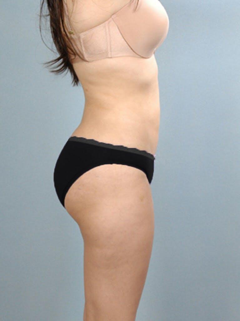 Brazilian Butt Lift Gallery - Patient 20909772 - Image 2