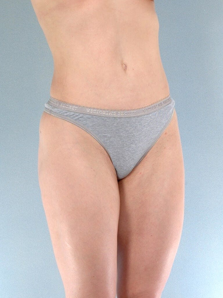 Liposuction Gallery - Patient 20909774 - Image 4
