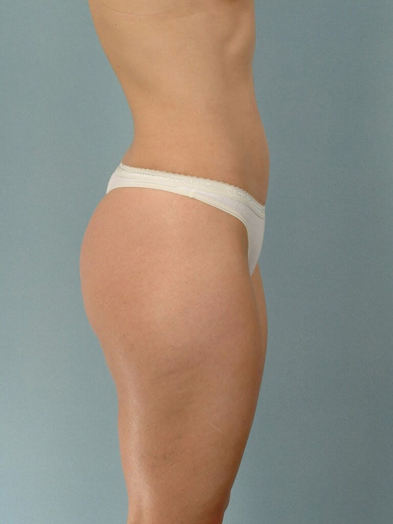 Liposuction Gallery - Patient 20909774 - Image 5