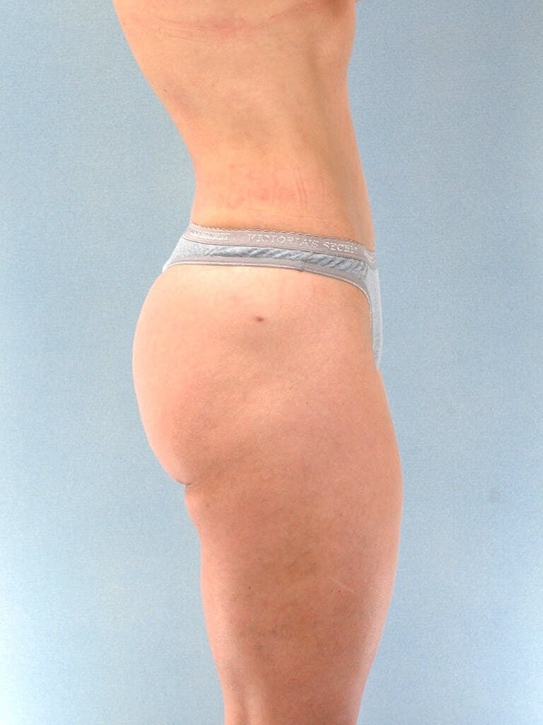 Liposuction Gallery - Patient 20909774 - Image 6