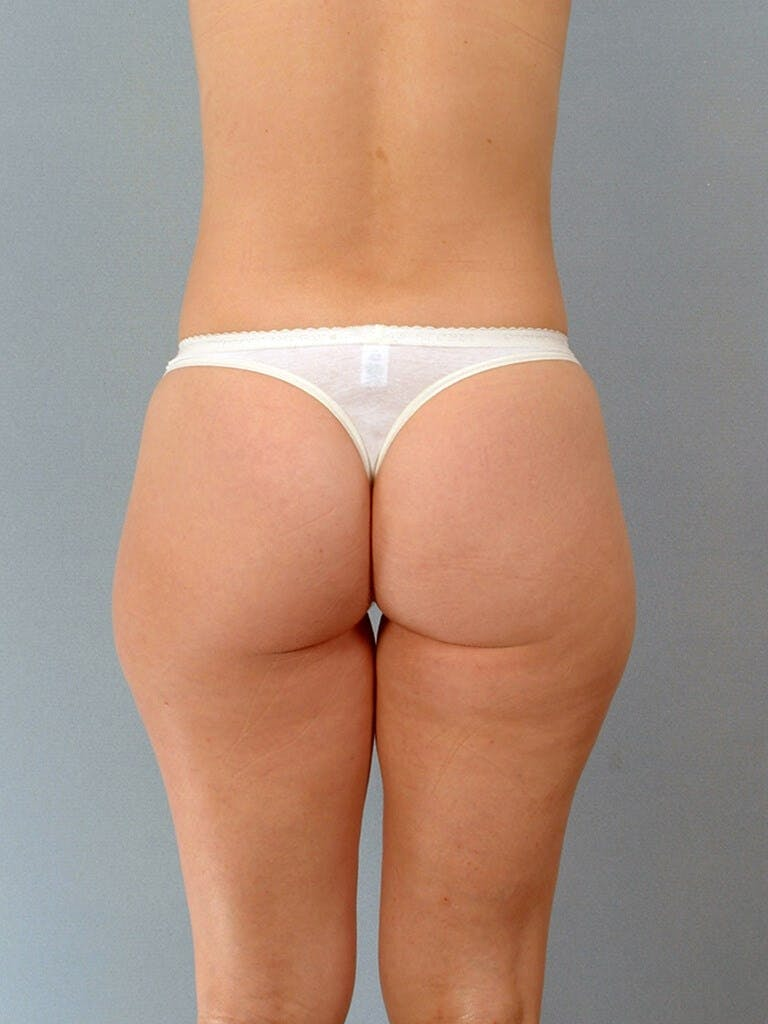 Liposuction Gallery - Patient 20909774 - Image 7