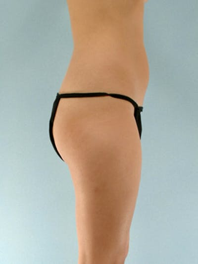 Brazilian Butt Lift Gallery - Patient 20909776 - Image 1