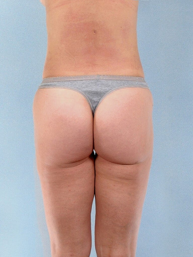 Liposuction Gallery - Patient 20909774 - Image 8