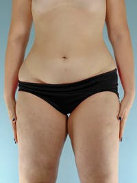 Liposuction Gallery - Patient 20909778 - Image 1