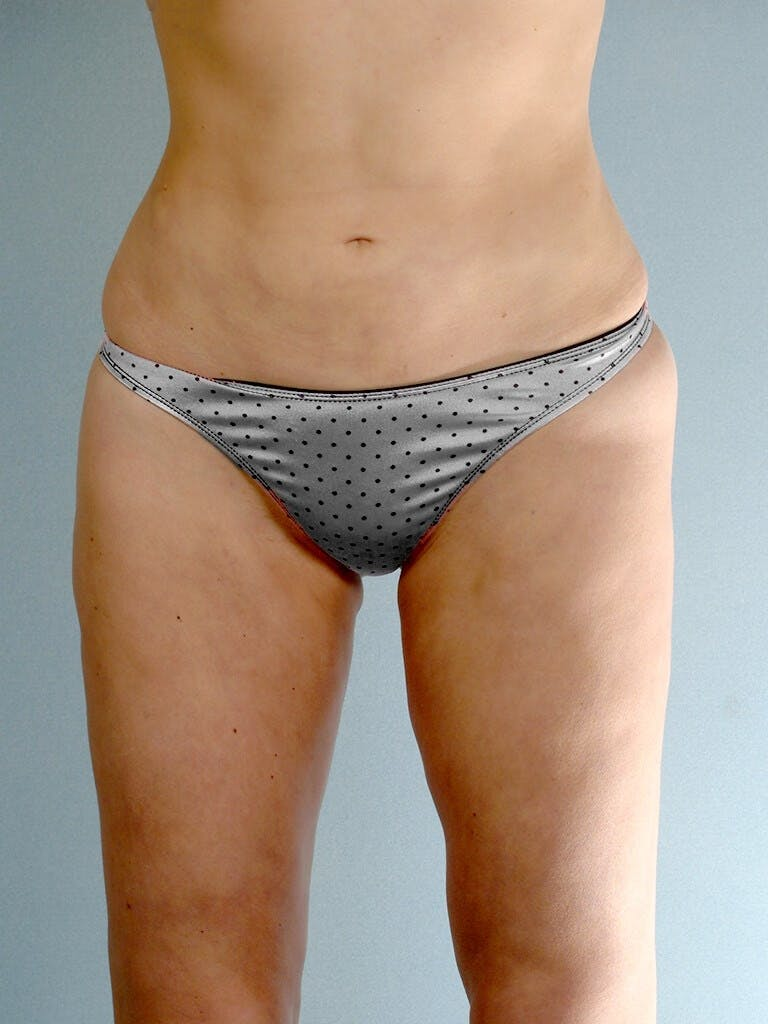 Liposuction Gallery - Patient 20909778 - Image 2