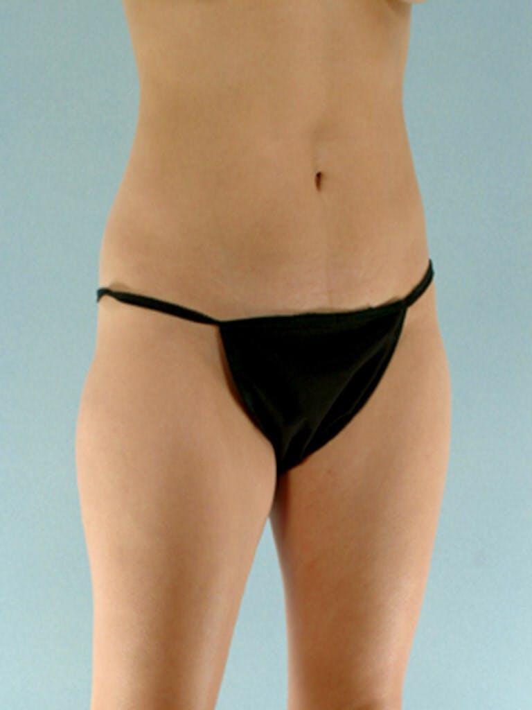 Brazilian Butt Lift Gallery - Patient 20909776 - Image 5