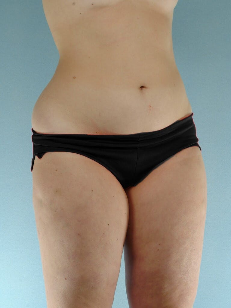 Liposuction Gallery - Patient 20909778 - Image 3
