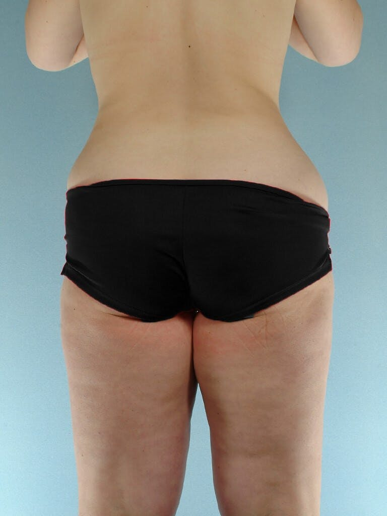 Liposuction Gallery - Patient 20909778 - Image 5