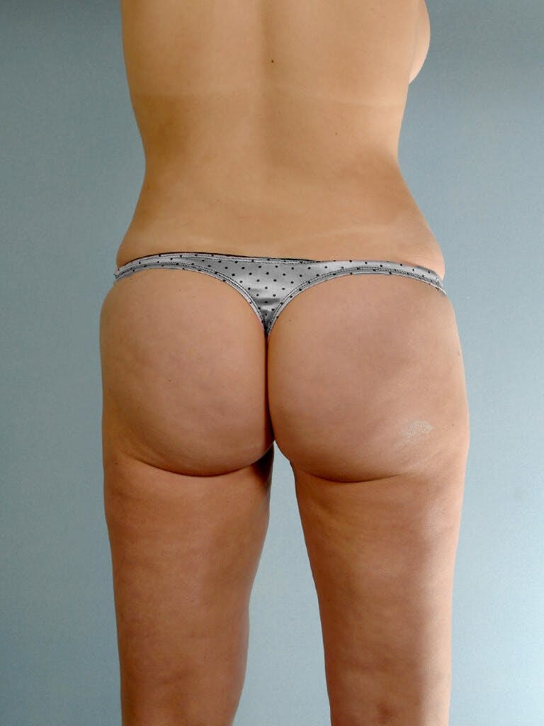Liposuction Gallery - Patient 20909778 - Image 6