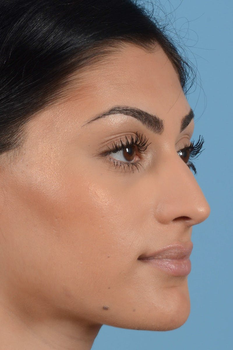 Rhinoplasty Gallery - Patient 20909783 - Image 1